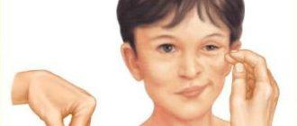 Гипопаратиреоз - симптомы и лечение